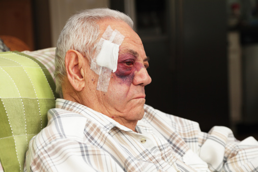 A senior man with a dreadful blotchy black and blue (and red) eye also has a large bandage covering several medical stitches in his temple